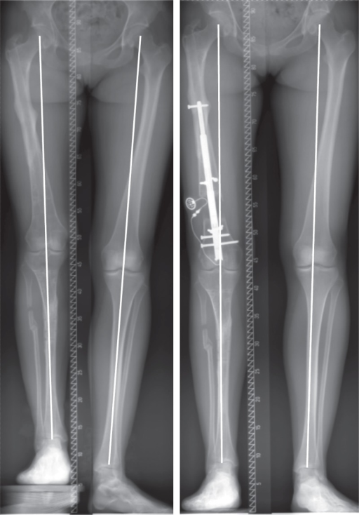 Femoral lengthening with a retrograde intramedullary na | Open-i