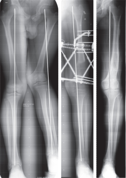 A Patient With A Biplanar Deformity Shortening And Val Open I