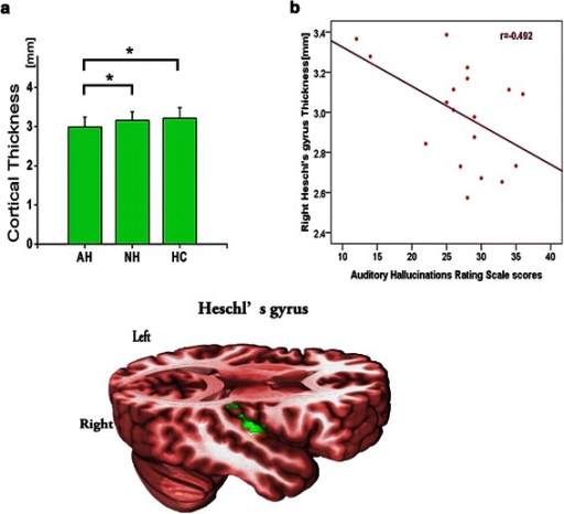 Cortical thickness analysis among patients and healthy controls groups. a Significant differences among groups were identified using ANCOVA with age and sex as covariates (* p < .05, corrected for multiple comparisons with LSD). The right Heschl's gyrus (labeled in green) showed significant difference in cortical thickness among three groups. (AH < NH, HC, AH = Hallucinating patients with schizophrenia, NH = Non-hallucinating patients with schizophrenia, HC = Healthy controls. Error bars represent SDs). b The cortical thickness of right Heschl's gyrus was negatively correlated with the severity of auditory verbal hallucinations, as assessed by AHRS scores