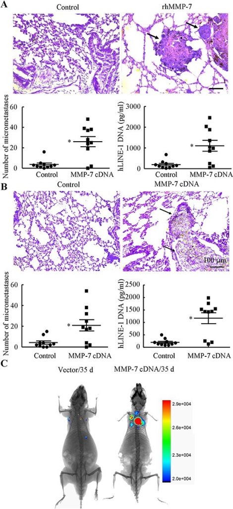 MMP-7 promotes lung colonization in vivo(A) Mice were injected via the tail vein with either rhMMP-7 (10 μg/ml) or vehicle control at the day of the cell injection (t = 0 weeks) and weekly thereafter for 5 weeks. (B) In select, experiments, mice were injected with CH2879 cells transfected with either MMP-7 cDNA or the empty vector, n = 7–10 mice per group (A, B upper panels) The right lung lobes from each animal were fixed, stained with hematoxylin and eosin, and examined for signs of lung micrometastases and representative histology of lungs following tail vein injection were shown (indicated by arrowheads). (A, B lower panels) The number of micrometastases present in lungs of mice following tail vein injection was quantified in the absence or presence of rhMMP-7 treatment or MMP-7 cDNA plasmid transfection. In addition, content of human DNA was quantified in lungs of mice injected with CH2879 chondrosarcoma cells via qPCR of hLINE-1 DNA. Data represent the mean ± S.E. of 10 independent experiments. *p < 0.05 with respect to static-, vehicle-treated or vector-transfected control cells. In separate experiments, CH2879 cells transfected with MMP-7 cDNA-mcherry plasmid was injected to NGS mice and the fluorescence was scanned using Bruker in vivo imaging systems (MS FX PRO, Carestream, U.S.A) (C) Images are representative of six independent experiments, all revealing similar results.