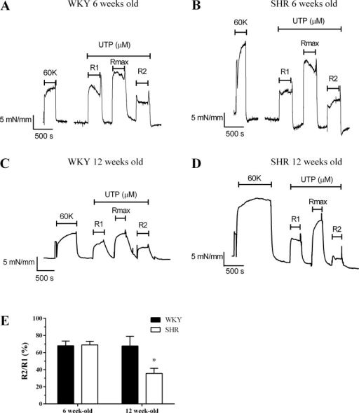 Profiling desensitization of UTP-mediated contractile responses in mesenteric arteries from pre- and posthypertensive SHR and normotensive WKY rats. Mesenteric arteries were subjected to the following desensitization protocol: 100 or 200 μM UTP (R1, for 5 min) challenge, followed by 5 min washout, prior to maximal UTP (300 or 500 μM, Rmax, 5 min) challenge, followed by a wash period of 5 min before further 100 or 200 μM UTP (R2, 5 min) exposure, for SHR or WKY vessels, respectively. Representative myograph traces are shown for arteries isolated from 6-wk-old WKY (A) and SHR (B) animals, or 12-wk-old WKY (C) or SHR (D) animals contracted with UTP. Desensitization of vessel contraction was determined as the relative change in R2 response compared with R1. Cumulative data (E) are expressed as means ± SE for the % change in R2 relative to R1; n = 7–9 vessels from ≥6 separate animals. Statistical significance is indicated as *P < 0.05 vs. WKY (unpaired t-test).