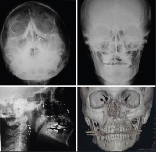 Radiographic aspect immediately after firearm accident