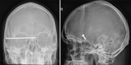 Anterior-Posterior and lateral skull X-rays showing an 8.7 cm nail projecting over the right temporal region, with apparent intracranial extension. No discrete calvarial fractures are detected