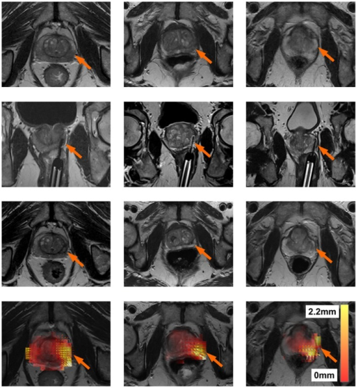 Results for three patients (one per column).The first row represents the pre-treament MRI scan (IPre). The second row represents the location of the laser during treatment. The third row represents the post-treament MRI scan (IPost). The fourth row represents a heat map of the ablation induced deformations T3. White represents regions of large deformations (2.2 mm), while transparent red represents regions of small deformations (0 mm). Small arrows represent the direction of the deformation (in all cases pointing towards the centroid of the prostate) after removing deformations due to patient alignment (T1) and surrounding tissues (T2). It can be seen that in all patients, the areas with the the largest deformations correspond to the focal laser ablation sites.