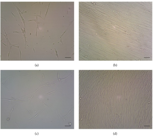 Morphological characteristics of bone marrow mesenchymal stem cells (BMMSCs) and skin mesenchymal stem cells (SMSCs). (a) BMMSCs cultured for 7 days. (b) BMMSCs cultured for 16 days. (c) SMSCs cultured for 16 days. (d) SMSCs cultured for 29 days. Scale bar: 10 μm.