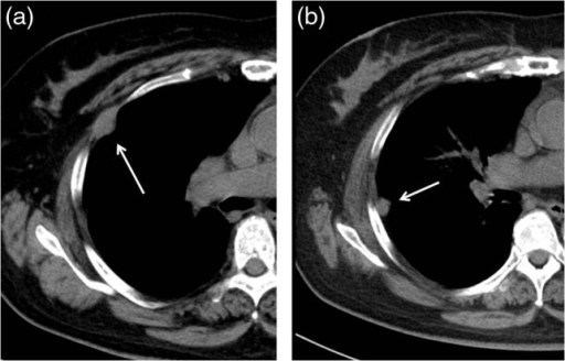 Follow-up CT at 36 months after the operation revealed two pleural tumorslocating at the second (a) and third (b) ports usedin the VATS operation.