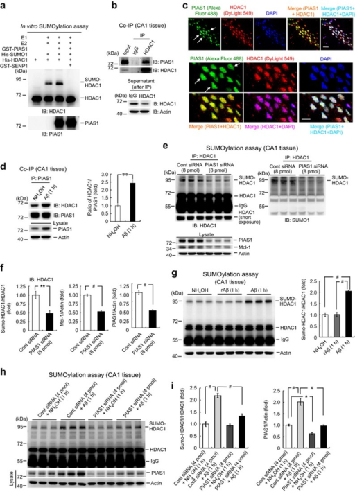 Acute Aβ increases HDAC1 SUMOylation by PIAS1 in the hippocampus. (a) In vitro SUMOylation assay showing HDAC1 SUMOylation by PIAS1. Recombinant E1, E2 proteins (from the SUMO kit) and purified GST-PIAS1, His-SUMO1, His-HDAC1 and GST-SENP proteins were added to the reaction for this assay. (b) Co-IP experiment showing the association between PIAS1 and HDAC1 in rat hippocampus. (c) Immunohistochemistry showing PIAS1 and HDAC1 are both present in the nucleus of the same neurons in CA1 area of rat brain. N=3. Scale bar, 20 μm (upper panel); 10 μm (lower panel). (d) Co-IP experiment showing the association between PIAS1 and HDAC1 with and without acute Aβ treatment with quantified results (n=3 each group, t1,4=6.5, P<0.01). (e) Effects of knockdown of PIAS1 on endogenous HDAC1 SUMOylation, Mcl-1 and PIAS1 expression in rat hippocampus. (f) Quantified results are shown (n=5 each group; for HDAC1 SUMOylation, t1,8=4.02, P<0.01; for Mcl-1, t1,8=11.69, P<0.001; for PIAS1, t1,8=9.6, P<0.001). (g) Effects of Aβ and reverse Aβ on HDAC1 SUMOylation in rat hippocampus (n=5 each group; F2,12=62.07, P<0.001). (h) Effect of knockdown of PIAS1 (with sub-threshold concentration of PIAS1 siRNA) on Aβ induction of HDAC1 SUMOylation in rat hippocampus. (i) Quantified results are shown (n=5 each group; for HDAC1 SUMOylation, F3,16=44.88, P<0.001; for PIAS1, F3,16=49.61, P<0.001). rAβ: reverse Aβ. Data are mean±s.e.m. *P<0.05, **P<0.01 and #P<0.001