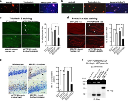 HDAC1 SUMOylation reduces amyloid plaque and the number of apoptotic cells in APP/PS1 mice. APP/PS1 mice (9 months old) receiving lenti-vector, lenti-Flag-HDAC1WT vector or lenti-Flag-HDAC1WT-SUMO1 vector, and WT mice receiving lenti-vector tranductions were subjected to (a) immunohistochemistry with antibody against Aβ and thioflavin S staining were carried out in CA1 tissue of APP/PS1 mice (9 months old) (n=3). Scale bar, 100 μm. (b) Immunohistochemistry with antibody against Aβ and ProteoStat dye staining were carried out in the same mice (n=3). Scale bar, 100 μm. Animals receiving the same lenti-vector transductions described in Figure 5a were also subjected to (c) thioflavin S staining and quantified (n=4 each group; F3,12=80.81, P<0.001). Arrowheads indicate cells showing thioflavin S staining. Scale bar, 200 μm and (d) ProteoStat dye staining and quantified (n=4 each group; F3,12=201.15, P<0.001). Arrowheads indicate cells showing ProteoStat dye staining. Scale bar, 200 μm and (e) TUNEL staining and quantified (n=4 each group; F3,12=60.4, P<0.001). Cells in brown color indicated by arrowheads are the apoptotic cells. Scale bar, 50 μm. (f) Flag-vector, Flag-HDAC1WT plasmid, Flag-HDAC1 sumo-mutant plasmid or Flag-HDAC1-SUMO1 fusion plasmid was transfected to rat CA1 area and ChIP PCR for HDAC1 binding to the neprilysin promoter was determined. Plasmid transfection and expression was confirmed by immunoprecipitation and immunoblotting using anti-Flag antibody (lower panel). Experiments are in duplicates. Lenti-F-HDAC1WT: Lenti-Flag-HDAC1WT. Data are mean±s.e.m. #P<0.001