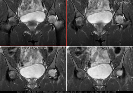 T2 weighted MR image demonstrates high signal in the left femoral head with alternating high and low signal at the subchondral surface c/w AVN