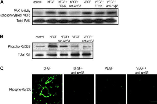 Integrins αvβ3 and αvβ5 differentially influence PAK activity during angiogenesis. (A) 10-d-old chick CAMs were exposed to filter paper disks saturated with RCAS-FRNK (inactive FAK), followed by stimulation with either 2 μg/ml bFGF or VEGF for 20 h. 1 h before tissue excision, function-blocking antibodies directed against integrin αvβ3 or αvβ5 were i.v. injected. Endogenous PAK was immunoprecipitated from equivalent amounts of total protein and subjected to a kinase assay using myelin basic protein as a substrate, electrophoresed, and transferred to nitrocellulose as described in Materials and methods. The above blot was probed with an anti-PAK antibody as a loading control. (B) Chick CAMs were treated as above with the exception that total lysates were probed with an antibody directed specific to c-Raf phosphorylated at serine 338. The above blot was probed with an anti-c-Raf antibody as a loading control. (C) Chick CAMs were treated as above with the exception that after 20 h, the angiogenic tissue was resected and snap frozen. Tissue sections were probed with an antibody directed against c-Raf phosphorylated at serine 338. Bar, 50 μm.