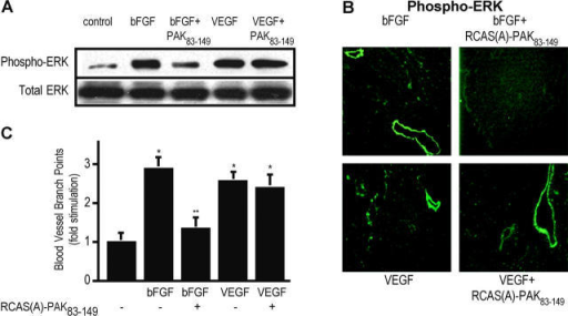 PAK activity is required for bFGF-mediated ERK activation and angiogenesis. (A) 10-d-old chick CAMs were exposed to filter paper disks saturated with RCAS-PAK83–149 (inactive PAK), followed by stimulation with either 2 μg/ml bFGF or VEGF for 20 h. CAM tissue was excised, subjected to detergent extraction, electrophoresed, and probed with antibodies directed against the active phosphorylated form of ERK or an anti-ERK antibody as a loading control as described in Materials and methods. (B) Chick CAMs were treated as above with the exception that after 20 h, the angiogenic tissue was resected and snap frozen. Tissue sections were probed with an antibody directed against the active phosphorylated form of ERK. (C) 10-d-old chick CAMs were exposed to filter paper disks saturated with RCAS-PAK83–149 (inactive PAK), followed by stimulation with either bFGF or VEGF for 72 h. Blood vessels were enumerated by counting vessel branch points in a double-blinded manner. Each bar represents the mean ± SEM of 36 replicates. *, P < 0.05 relative to control; **, P < 0.05 relative to treatment.