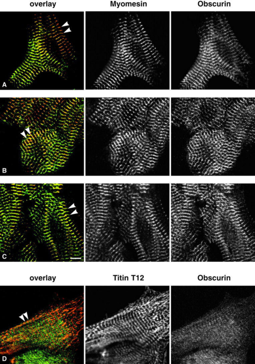 Localization of endogenous obscurin. Localization of endogenous obscurin (green with all antibodies) in neonatal rat cardiomyocytes demonstrates all four obscurin epitopes in association with the sarcomeric M-band (arrowheads). Obscurin visualized with α-Ob48–49 colocalizes with myomesin (red in A–C) at the M-band (A) similar to the staining observed with α-Ob51–52 (B) and α–Ob-DH (C). The epitope of α-Ob19–20 is first detected after birth and is initially only weakly expressed (D), counterstain with the titin Z-disk antibody T12 in red). Bar, 5 μm.