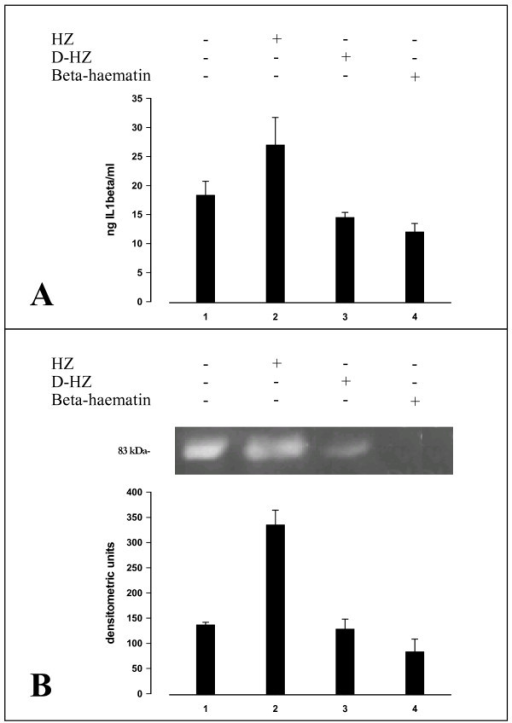 IL-1beta production and MMP-9 enzyme activity (in cell supernatants) in human adherent monocytes unfed or fed with HZ, delipidized HZ or beta-haematin. Human adherent monocytes were unfed or fed with HZ, delipidized HZ (D-HZ) and beta-haematin. Panel A: IL-1beta production. After 3 h phagocytosis and a further incubation during 48 h, IL1-beta levels were measured by ELISA in cell supernatants. Data are given as ng IL-1beta/ml supernatant (mean values ± SD of four independent experiments). Data were analysed for significance by Student's t-test and differences between delipidized HZ or beta-haematin against unfed controls were not significant. Panel B: Gelatin zymography and densitometric quantification of MMP-9 enzyme activity. After 3 h phagocytosis and a further incubation during 48 h, cell supernatants were separated by PAGE and MMP-9 enzyme activity measured by gelatin zymography and densitometric quantification (see legend to Figure 2 for details). The 83-kDa negative band in the gel corresponds to MMP-9 enzyme activity. Data are given as arbitrary densitometric units (mean values ± SD of four independent experiments). Data (Panel A, panel B) were analysed for significance by Student's t-test. Significance of differences (column/lane numbers). HZ-fed(2) vs unfed(1)/D-HZ-(3)/beta-haematin(4)-fed monocytes, p < 0.01; unfed(1) vs D-HZ(2)/beta-haematin(4)-fed monocytes, n.s.