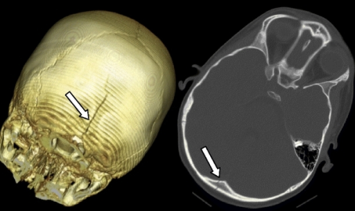 This midline occipital fracture extending into the foramen magnum is easily differentiated from a normal persistent midline occipital fissure because of its length, extending 3 cm from the dorsal lip of the foramen magnum