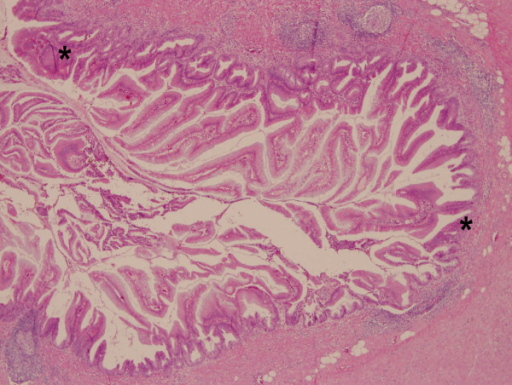 The appendix tissue reveals villous adenoma with moderate to severe dysplasia (asterisk) located suppurative appendicitis. (Hematoxylin and eosin stain, original magnification, × 400).
