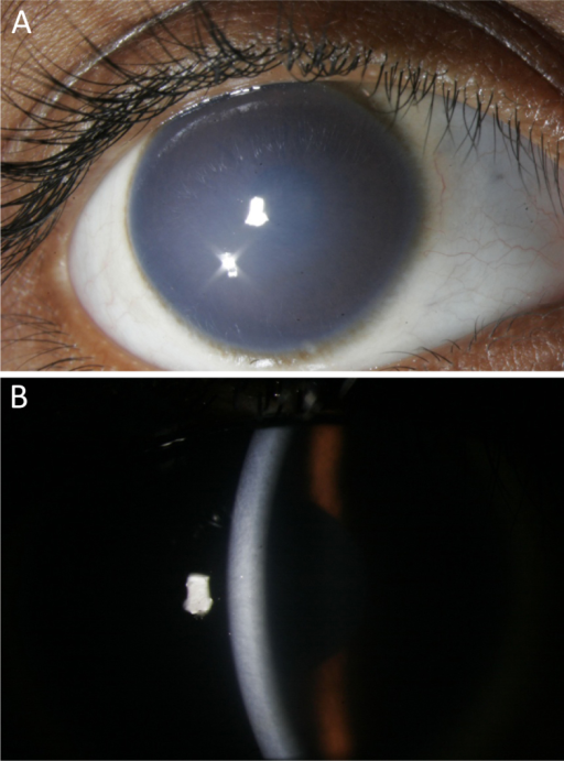Clinical features of affected individual II-1 from family 7. A: Cornea showing opacification. B: Slit-lamp examination of the cornea showing thickening and opacification.