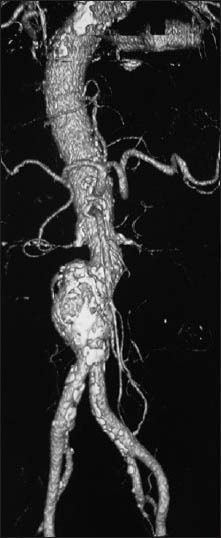3D reconstruction of multislice computed tomography angiography: Extensive calcification of the abdominal aorta extending to the primitive iliac arteries