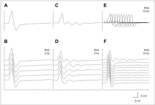 Recording from the abductor digiti minimi muscle. Data are from a single muscle-specific tyrosine kinase antibody-positive myasthenia gravis patient. Repetitive discharges were not seen in the baseline electrodiagnostic testing (A and B) after the first compound muscle action potential (CMAP). Repetitive CMAPs were demonstrated after the intramuscular injection of neostigmine methylsulfate (0.02 mg/kg) (C-F). On repetitive nerve stimulation (RNS) at 3 Hz, the repetitive discharges after the first CMAP were diminished by the second stimulation (D). This reduction was more definite for 10-Hz RNS (E and F).