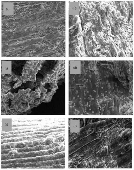 The cytoarchitecture of mouse EDL muscle 24 h after perimuscular injection of B. leucurus venom: effect of A. cochliacarpos extract (EAc). Muscles were studied by scanning electron microscopy after the removal of connective tissue matrices using a modified KOH-collagenase digestion method. (a) PSS; (b), (c), and (d) venom (1.0 mg/kg); (e) venom + dexamethasone (2 mg/kg, i.v); (f) venom + EAc 400 mg/kg (n = 6 per group). Magnification: 100x ((a), (b), (e), and (f)); 400x ((c) and (d)).