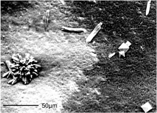 SEM picture of urinary crystals found in the native sediment of a filtered 24-h urine of a repeatedly 'mild hypercalciuric' but non-stone-forming proband (pore size 0.45 μm, urinary pH = 5.81, nitrite positive, calcium excretion = 5.9 mmol/day). Rosette-shaped calcium phosphate (left) coexists with rod-like struvite (mid) and bipyramidal calcium oxalate (right). The morphology-based analysis is confirmed by elemental analysis using SEM-linked energy-dispersive X-ray spectroscopy.
