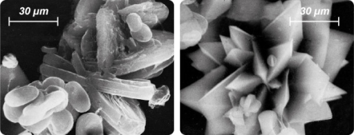 SEM images of pathological urinary sediments of highly recurrent CaOx stone patients. Left: Microlith composed of whewellite crystals systematically grown together (twinning). Right: Multiple interpenetrating weddellite twins indicate a lack of inhibitors of crystal growth.