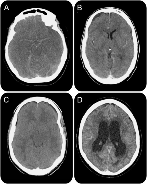 Spectrum of abnormal CT scanning of patients with bacterial meningitis presenting with a minimal Glasgow Coma Scale score(A) Generalized cerebral edema with signs of pseudo-subarachnoid hemorrhage; (B) subdural empyema; (C) generalized cerebral edema indicating severe cerebral inflammation; (D) hydrocephalus.