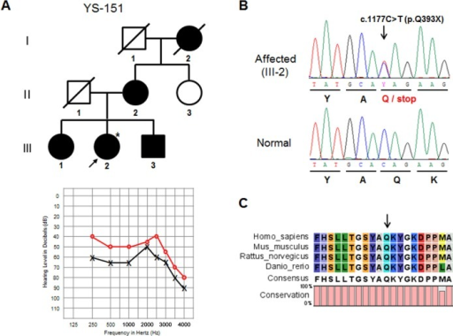 Mutation analysis of the EYA4 gene in the YS-151 family.(A) Pedigree of a Korean family with autosomal dominant inheritance (upper panel). A three-generation pedigree that includes 8 members is presented. The filled symbols and open symbols indicate affected and unaffected individuals, respectively. The arrow designates the proband. Pure tone audiogram for the left and right ears of the YS-151 patient (III-2) (lower panel). The circles and crosses indicate unmasked air conduction thresholds for the right and left ears, respectively. (B) DNA sequencing analysis of EYA4 exon 13 shows the c.1177C>T change in an affected family member (III-2) and a normal control. The arrow indicates the changed base. (C) Multiple alignments of the amino acid sequence encoded by the EYA4 gene including the HR domain in vertebrate species. The arrow marks the position of the p.Q393X mutation.