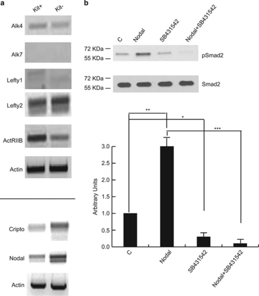 Expression and activity of the Cripto-Nodal signaling pathway in postnatal mouse spermatogonia. (a) Semiquantitative RT-PCR analysis of mRNA expression of the indicated elements of the Cripto-Nodal signaling pathway in Kit+ and Kit- spermatogonia. (b) Western blot analysis of Smad2 phosphorylation in cultured untreated Kit+ spermatogonia and in the same cells treated overnight with recombinant Nodal, in the presence or absence of the Alk4/7 selective inhibitor SB431542. Densitometric analysis of western blots from three independent experiments is shown below. Bars represent the mean ±S.D.