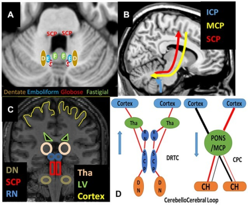 Schematic Representation of (A) deep cerebellar nuclei on axial T1w, (B) cerebellar peduncles on sagittal, (C) relevant structures on coronal T1w and (D) cerebellocerebral loop pathways are shown. Abbreviations: CH: Cerebellar Hemisphere, CPC: Cortico-Ponto-Cerebellar Pathways, DN: Dentate Nucleus, DRTC: Dentate-Rubro-Thalamo-Cortical Pathways, ICP: Inferior Cerebellar Peduncle, LV: Lateral Ventricles, MCP: Middle Cerebellar Peduncle, RN: Red Nucleus, SCP: Superior Cerebellar Peducles Tha: Thalamus.