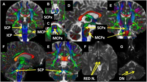 Relevant structures who have been used in the reconstruction are presented on the fused principal eigenvector map (Red-Green-Blue) and MD (A–E) and Diffusion-weighted image (DWI) non-diffusion (F,G) maps. Abbreviations: DN; Dentate Nucleus, ICP: Inferior Cerebellar Peduncle, MCP: Middle Cerebellar Peduncle, MCPx: Middle Cerebellar Peduncle Crossing, Red N.: Red Nuclei, SCP: Superior Cerebellar Pedunles, SCPx: Superior Cerebellar Pedunles Crossing.