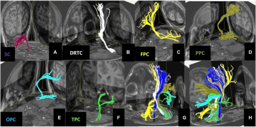 3D views of the (A) Spinocerebellar, (B) Dentate-Rubro-Thalamo-Cortical, (C) Fronto-Ponto-Cerebellar, (D) Parieto-Ponto-Cerebellar, (E) Occipito-Ponto-Cerebellar, (F) Temporo-Ponto-Cerebellar pathways. All these cerebellar pathways are illustrated together with corticospinal tract (dark blue) in panels (G,H).