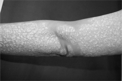 Plaque type psoriasis with silvery scales on left arm.