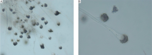 Microscopic examination of Aspergillus fumigatus (A, 10× magnification), and microscopic examination revealing conidial heads (B, 40× magnification)