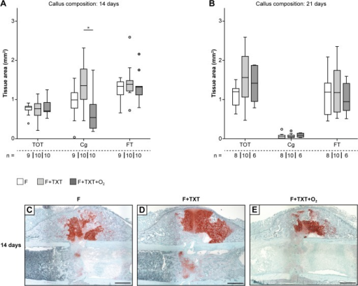 Tissue composition of fracture calli 14 and 21 days after injury.Callus composition of mice 14 and 21 days post-injury. (A) Mice with TXT displayed significantly more cartilage in comparison to O2 treated mice after 14 days. (B) Analysis after 21 days did not reveal intergroup differences. (C-E) Representative Safranin-O stained callus sections 14 days after injury. Markedly more cartilage (stained red) was observed in F+TXT mice compared to the other groups. TOT = total osseous tissue, Cg = cartilage, FT = fibrous tissue. Scale bars: 500 μm. Data represent medians and quartiles. Specimen numbers for each group are depicted. *p<0.05.