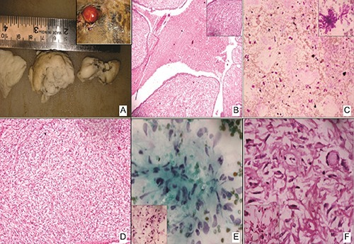 Panel of representative photomicrographs showing (A) gross nodular, solid tissue piece. Inset: inflamed recurrent mass. B) Benign phylloides showing cleft like spaces. Inset showing benign glandular elements. C) Cytology showing scant cellularity. Inset shows plump spindle cells. D) Spindle to ovoid cells with hyper chromatic nuclei, inconspicuous nucleoli and ill defined pale cytoplasm. E) Cytology from recurrent nodule showing increased cellularity and pleomorphism. Inset showing high mitosis. F) Spindle shaped cells arranged in diffuse and fascicular pattern. Inset showing bi- and multi-nucleation and mitosis.
