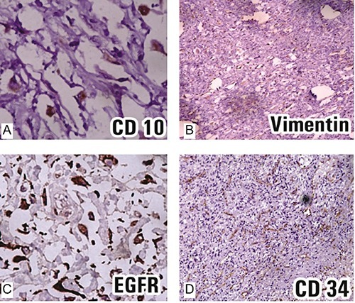 Immunohistochemical findings. Tumor cells show (A) strong CD 10 positivity (B) Vimentin diffusely positive (C) EGFR strongly and diffusely positive (D) CD 34 positivity around the blood vessels and negative in tumor cells.
