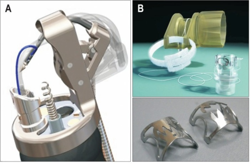 Overstitch System and Over-The-Scope-Clip (OTSC). (A) Although the Overstitch System is an innovative flexible endoscopic full-thickness suturing device with suturing threads, because of its anteriorly directed suture needle, caution should be exercised so as not to cause injury to adjacent organs. Additionally, the OTSC requires two-channel scopes. (B) The OTSC can be attached to a normal multipurpose endoscope and can be used relatively easily. Because it is a clip-type suturing device, which means that it cannot turn back once it is released, caution should be exercised to avoid suture misfire.