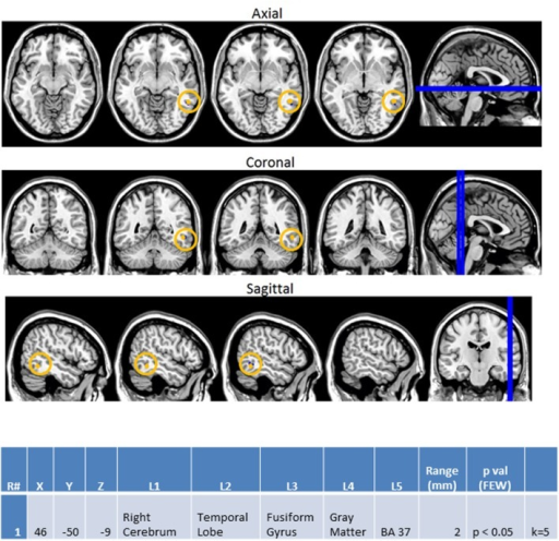 "Session 2 AA_MM2-AA2 Control > ASD significant fMRI activations. Axial cross sections highlighting regions of greater Control (orange) group-level activations are depicted for four planes. A sagittal cross section depicts the location of the axial planes (blue lines; top row). Coronal cross sections highlighting regions of greater Control (orange) group-level activations are depicted for four planes. A sagittal cross section depicts the location of the coronal planes (blue lines; middle row). Sagittal cross sections highlighting regions of greater Control (orange) group-level activations are depicted for four planes. A coronal cross section depicts the location of the sagittal planes (blue lines; bottom row). The corresponding Brodmann area for significant area of activation is listed in the table at bottom (under the heading ""L5""). Statistical significance were based on a FWE corrected p-value threshold of p < 0.05 and k = 5 voxel threshold."