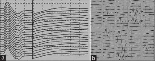 Twenty consecutive traces exhibiting absence of F wave during a train of 20 supramaxiamal stimuli to the left ulnar nerve at the wrist in a 50-year-old male patient of the P group. A number of repeater F waves were obtained during the following 80 supramaximal stimuli. Letters to the right of record identify waves on the basis of waveform and latency. (a) F waves recorded from 20 stimuli; (b) F waves recorded from 100 stimuli. Calibration: M response: 5 mV/division, 5 ms/division; F waves: 500 μV/division, 5 ms/division.