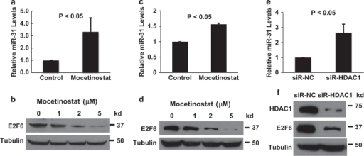 Mocetinostat activates miR-31 expression in prostate cancer cells. (a) DU-145 cells and (c) PC-3 cells were treated with 5 μM mocetinostat for 24 h. Total RNA was isolated from untreated (control) and mocetinostat-treated cells and real-time PCR analysis was performed as described in Materials and Methods. (b) DU-145 and (d) PC-3 cells were treated with various doses of mocetinostat for 24 h. Western blotting was performed with anti-E2F6 and antitubulin antibodies. (e and f) DU-145 cells were transfected with negative control or HDAC1 siRNAs. Real-time PCR and western blotting were performed as described in (a–d). The experiments have been repeated three times; data shown are mean values +S.D.