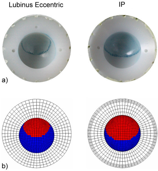 Contact area between humeral head and acetabular cup. Experimentally analyzed (a) and numerically simulated (b) contact area between Lubinus eccentric and IP acetabular cup and femoral head. After cyclic tests of hip implants in a simulator, the surfaces of UHMWPE cups were covered with a thin layer of diluted colourant (Tuschierpaste blau, Emil Alberts GmbH, Gevelsberg, Germany), and femoral heads were positioned in contact with the acetabular cups in the loading direction. After removing the femoral heads, the presence of blue color indicated the contact area. The contact area in the FE-simulations was analyzed under 3 kN axial load which was the maximum load in the experimental cyclic tests.