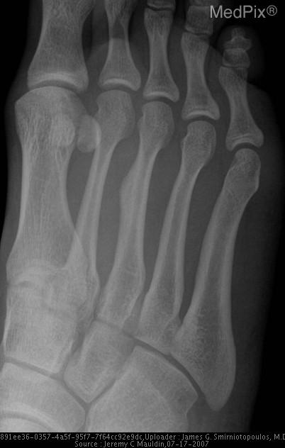Closeup radiographs of the right foot showing focal periosteal reaction/callous formation in the mid diaphysis of the right third metatarsal.