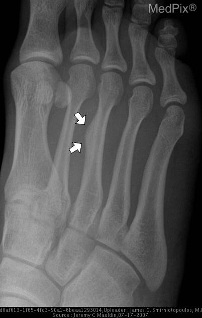 Closeup radiographs of the right foot showing focal periosteal reaction/callous formation in the mid diaphysis of the right third metatarsal (arrows).