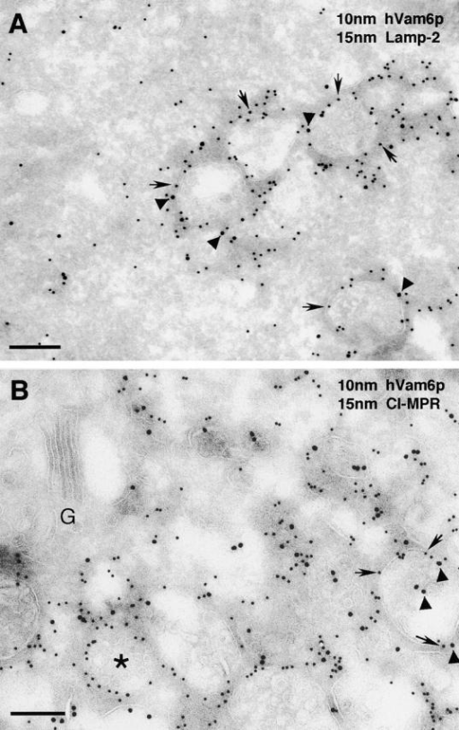 Association of hVam6p with clusters of lysosomes and late endosomes. HeLa cells were transiently transfected with HA–hVam6p and processed for immunoelectron microscopy. Ultra-thin frozen sections were labeled with antibodies to HA (to detect hVam6p) and either endogenous lamp-2 (A) or endogenous CI-MPR (B). Bound antibodies were detected using conjugated protein A–gold. Arrows indicate the localization of hVam6p to a halo around the membranes of lysosomes and late endosomes (A and B, 10-nm gold particles), whereas arrowheads indicate the localization of lamp-2 (A, 15-nm gold particles) or CI-MPR (B, 15-nm gold particles), and the asterisk marks a structure labeled only for hVam6p. G, Golgi. Bars, 0.2 μm.