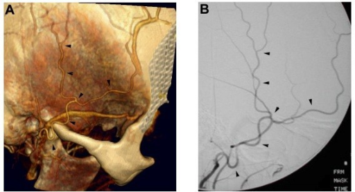 temporal artery with CTA  Comparison of the right superficial temporal    Superficial Temporal Artery Angiogram
