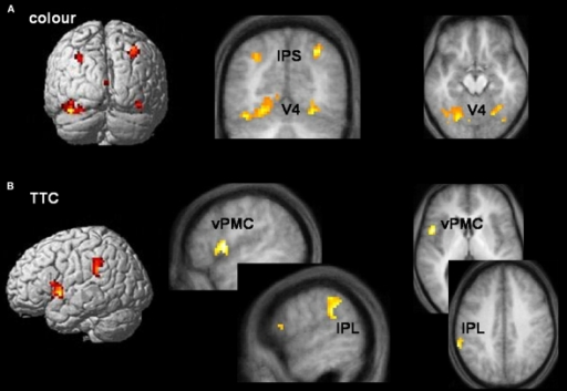 Task-specific networks. (A) Colour tasks preferentially activated visual area V4 (x, y, z = −18, −75, −12; 36, −60, −21) and intraparietal sulcus (IPS) (x, y, z = −30, −69, 39; 30, −66, 42) bilaterally during both allocentric and egocentric viewpoints. Activations are rendered onto a standard template brain, and superimposed onto coronal (y = −69 mm) and transverse (z = −18 mm) slices of the averaged structural MRI. (B) TTC tasks preferentially activated left pars opercularis of the inferior frontal lobe (part of ventral premotor cortex (vPMC)) (x, y, z = −51, 6, 3) and the supramarginal gyrus of left inferior parietal lobule (IPL) (x, y, z = −63, −45, 39) during both allocentric and egocentric viewpoints. Activations are rendered onto a standard template brain, and superimposed onto saggital (x = −51 and −60 mm for vPMC and IPL activations respectively) and transverse (z = 3 and 39 mm for vPMC and IPL activations respectively) slices of the averaged structural MRI. Areas of activity common to allocentric and egocentric viewpoints were derived from a logical AND inclusive-masking procedure.