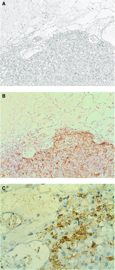 HE staining and IHC staining for Snail and E-cadherin in a human ACC ( × 10). (A) HE staining with tumour invading the surrounding fatty tissue. (B) Consecutive section with IHC staining for Snail showing Snail-expressing cells invading the fatty tissue. (C) Same specimen demonstrating the invasive front at a higher magnification ( × 40).