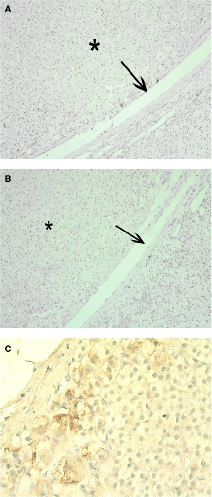 IHC for Snail and E-cadherin in an adrenocortical adenoma and Snail expression in normal adrenal cortex. (A) Adrenal cortical adenoma showed no Snail expression. Arrow indicates the border between normal adrenal cortex and adenoma (*). (B) Nor normal adrenocortical tissue neither adenoma showed any E-cadherin expression in this consecutive section. (C) Normal adrenocortical tissue was predominantly negative for Snail, but some single Snail-positive cells within the zona glomerulosa closed to the capsule and some Snail-positive mesenchymal cells (not shown) could be detected.