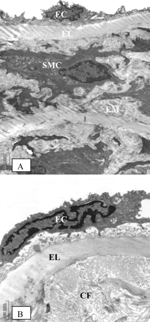 Electron microscopic findings on the aorta of control rats at eight weeks of study. (A) (Original magnification × 4400) The media layer is composed mainly of smooth muscle cells (SMC) with normal appearance, elastic lamina (EL) and extracellular matrix (EM) between the elastic lamina and smooth muscle cells. (B) (Original magnification × 11000) Extracellular matrix contains scattered collagen fibers (CF) and the endothelial cells appear smooth