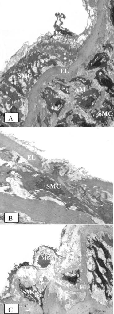 Electron microscopic findings on the aorta of the diabetic rats following eight weeks of study. (A) - (Original magnification × 4400) Proliferation and fragmentation of medial smooth muscle cells (SMC) in both the intima and media layers. The extracellular matrix also consists predominantly of amorphous material (AM), as apparent in the media of diabetic rats. Endothelial cells (EC) lost their squamous characteristics and became atrophic. (B) - (Original magnification × 4400) A smooth muscle cell (SMC) is migrating from the media into the intima, breaking through the elastic lamina (EL). (C) - (Original magnification × 6500) A mononuclear cell (MC) and fragmented smooth muscle cell (SMC) at the subendothelial layer of the intima. We observed fragmentation and reduplication of elastic lamina
